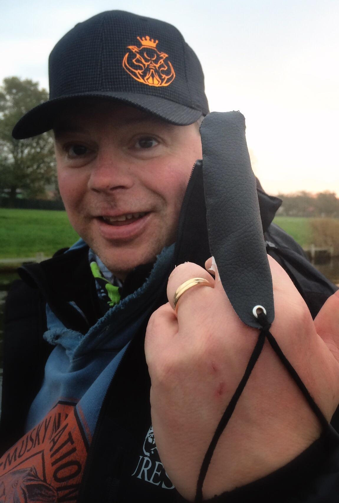 Pigg Kingen Fredrik visar sitt bandagerade väl valda finger.